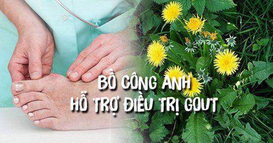 Bồ cồn anh hỗ trợ điều trị bệnh gout