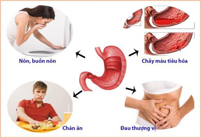 Hoài sơn hỗ trợ điều trị các bệnh dạ dày, đường ruột