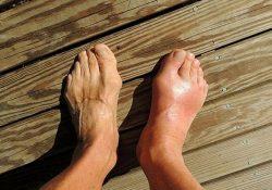 Thông tin, hình ảnh về bệnh gout