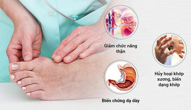 Biến chứng bệnh gout thường gặp