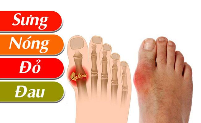 Dấu hiệu nhận biết bệnh gout thường gặp