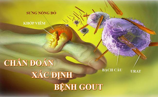 Chẩn đóa xác định bệnh gout