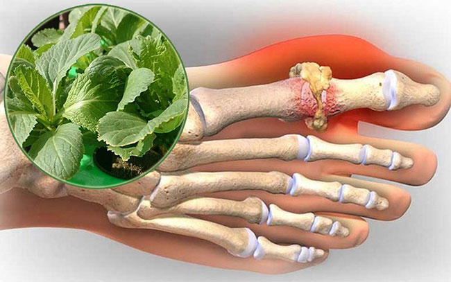 Bài thuốc chữa gout bằng cải bẹ xanh