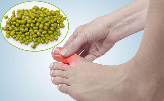 Đậu xanh chữa bệnh gout hiệu quả