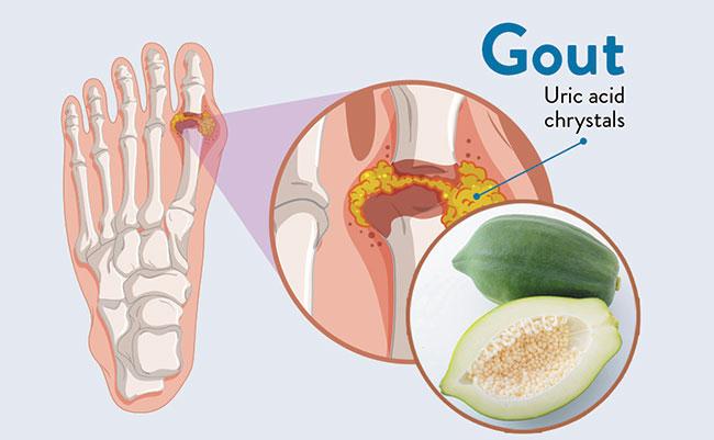 Công dụng đu đủ xanh trong điều trị bệnh Gout