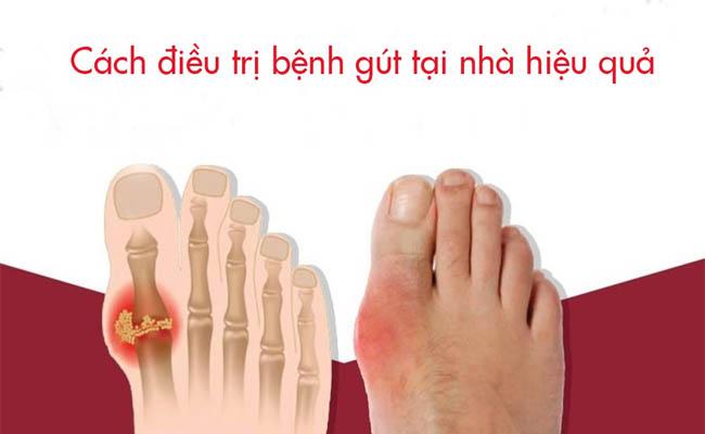 Các bài thuốc dân gian điều trị gout tại nhà cũng được nhiều người áp dụng