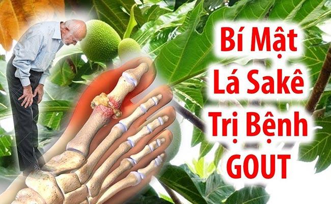 Bài thuốc chữa gout bằng lá Sakê