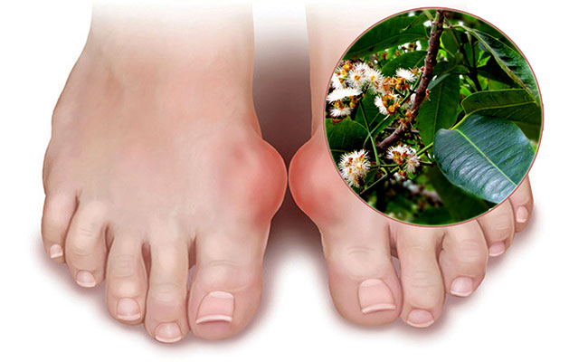 Bài thuốc chữa bệnh gout bằng lá vối tươi