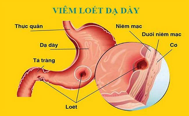 Lạm dụng chất kích thích tạo nên vết loét và cơn đau dạ dày