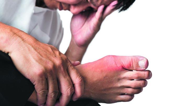 Điều trị bệnh gout bằng Thổ Phục Linh đang được nhiều người áp dụng