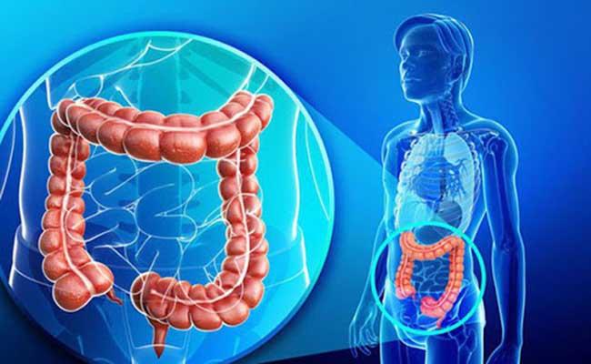 Đau dạ dày đi ngoài có thể xuất phát từ hội chứng ruột kích thích