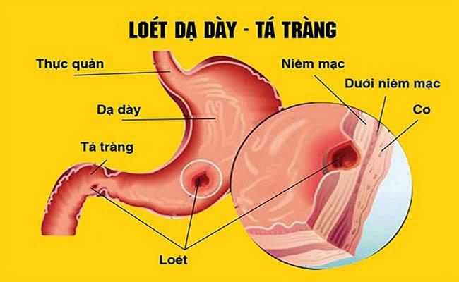Đau dạ dày từng cơn do tình trạng viêm loét gây nên