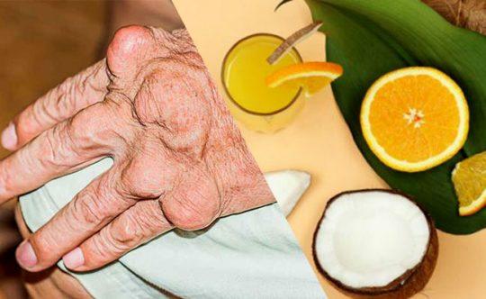 Người bị gout uống nước dừa và nước cam có được không?