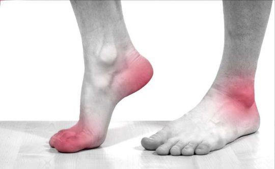 Biến chứng tiểu đường ở chân khá phổ biến