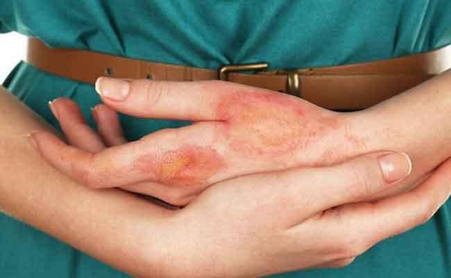 Biến chứng tiểu đường ở da: Dấu hiệu nhận biết, Thuốc và Cách điều trị