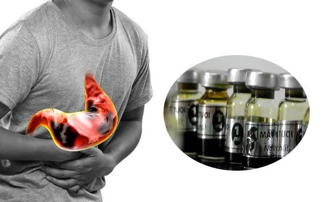 Người bệnh nên áp dụng bài thuốc chữa đau dạ dày bằng mật gấu