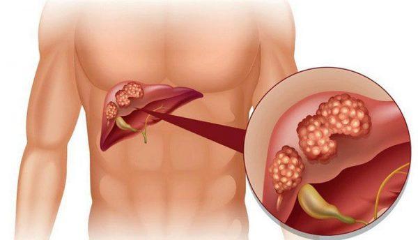 tiểu đường biến chứng ở gan