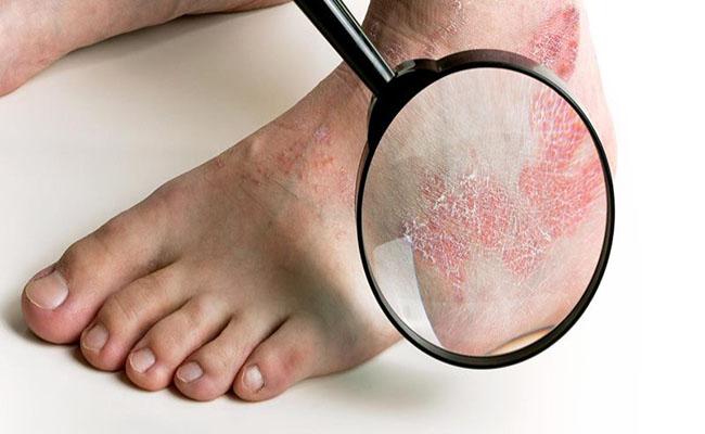 Bệnh tiểu đường gây ảnh hưởng trực tiếp đến đôi chân