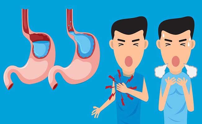 Cơ vòng thực quản suy yếu là nguyên nhân dẫn đến những cơn trào ngược dạ dày
