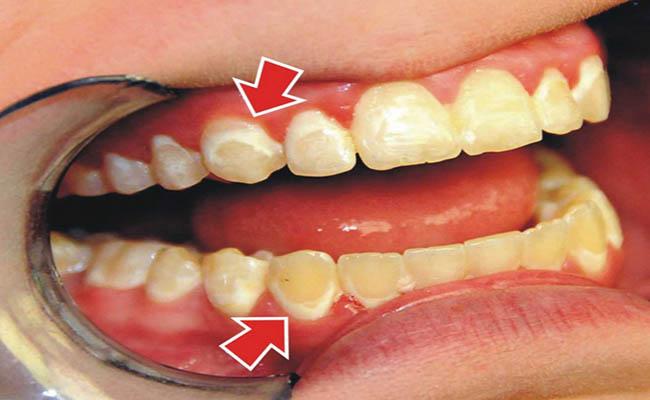 Nha chu là một trong những biến chứng tiểu đường và có thể làm mất răng