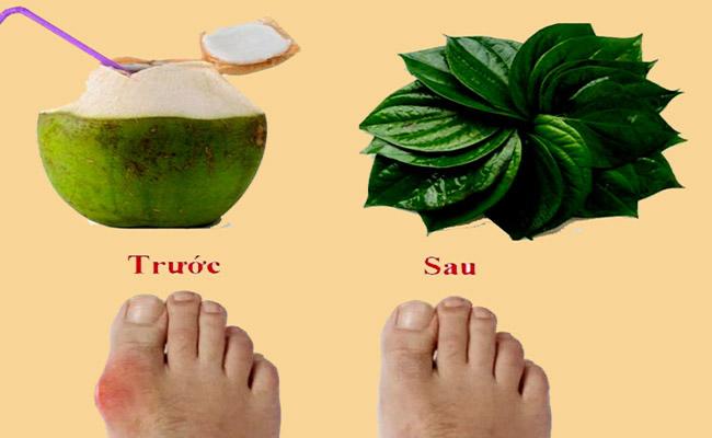 Chữa bệnh gút bằng lá trầu không và nước dừa