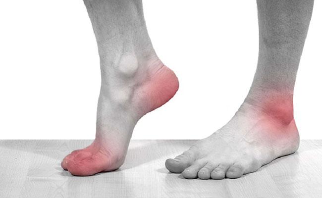 Bệnh gout đang ngày càng phổ biến và trở thành nỗi ấm ảnh với nhiều người
