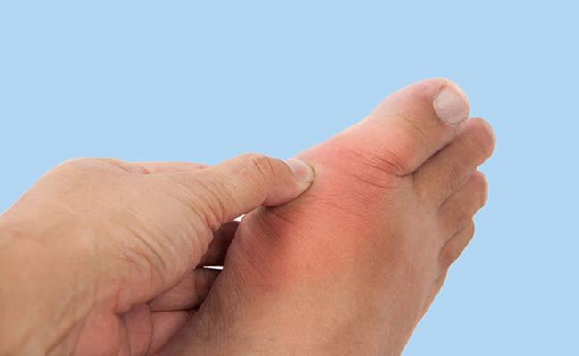 chữa bệnh gout bằng lá trầu không và nước dừa