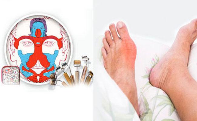 Khi điều trị bệnh gout bằng diện chẩn cần lưu ý một số vấn đề