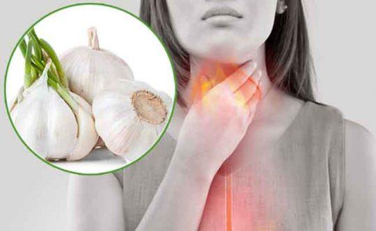 Cách chữa trào ngược dạ dày bằng tỏi được nhiều người áp dụng hiện nay