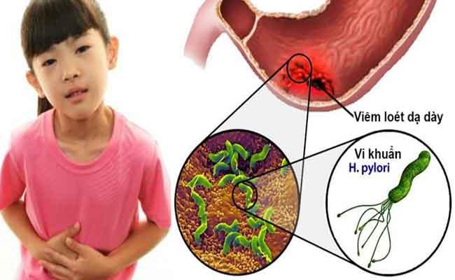 Có nhiều nguyên nhân khiến bé bị nhiễm vi khuẩn HP