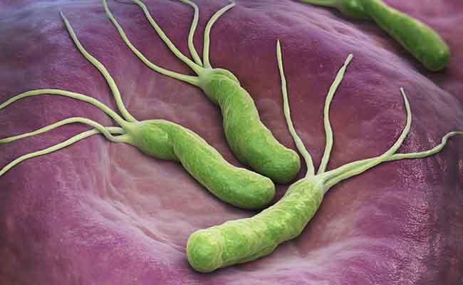 Vi khuẩn HP chiếm hơn 80% nguyên nhân gây bệnh dạ dày