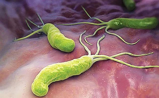 Vi khuẩn HP gây viêm dạ dày