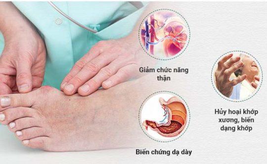 Bệnh gút (gout) khám ở đâu là thắc mắc của nhiều người