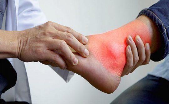 Hàng loạt biến chứng có thể xảy ra khi bị gout