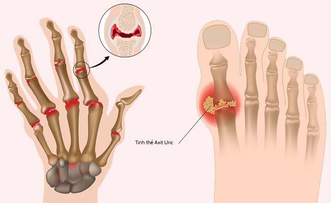 Bệnh gout gây ảnh hưởng đến chức năng sinh lý