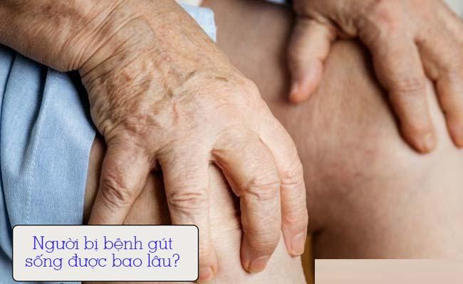 Bệnh gút sống được bao lâu là câu hỏi của nhiều người