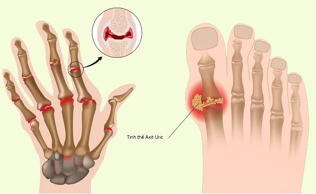 Bệnh gout gây ảnh hưởng nghiêm trọng đến sức khỏe