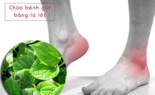 Chữa bệnh gout bằng lá lốt vô cùng hiệu quả