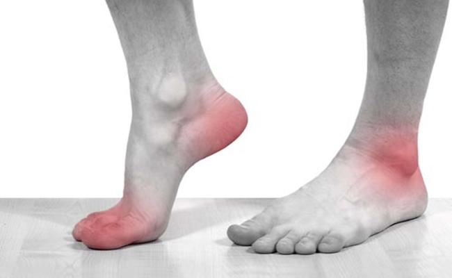 Dấu hiệu bệnh gout