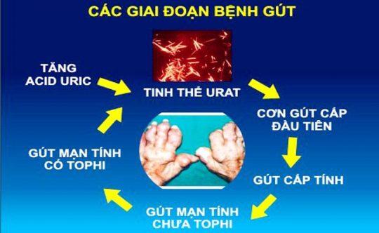 Các giai đoạn tiến triển của bệnh gout