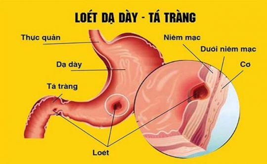 Viêm loét dạ dày - tá tràng đang ngày càng phổ biến