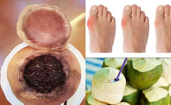 Nước dừa và đậu đen trị bệnh gout hiệu quả