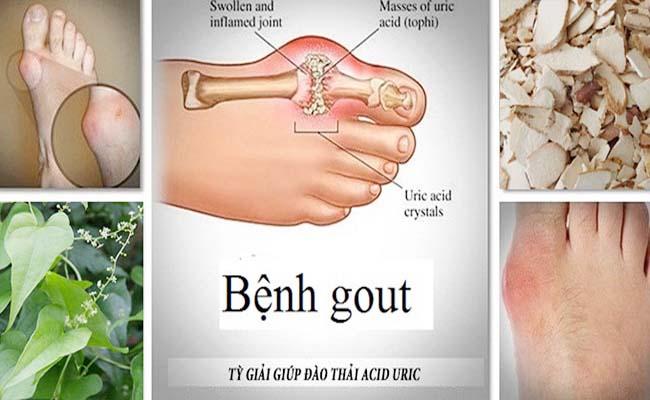Tỳ giải điều trị bệnh gout hiệu quả