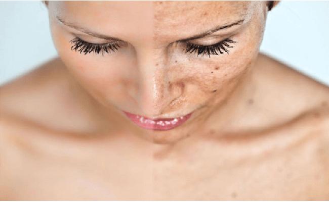 Ảnh hưởng của nám da