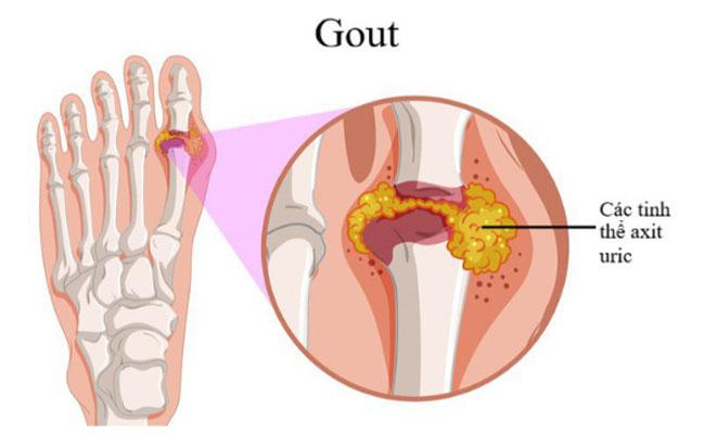 Axit uric có liên quan mật thiết với bệnh gout
