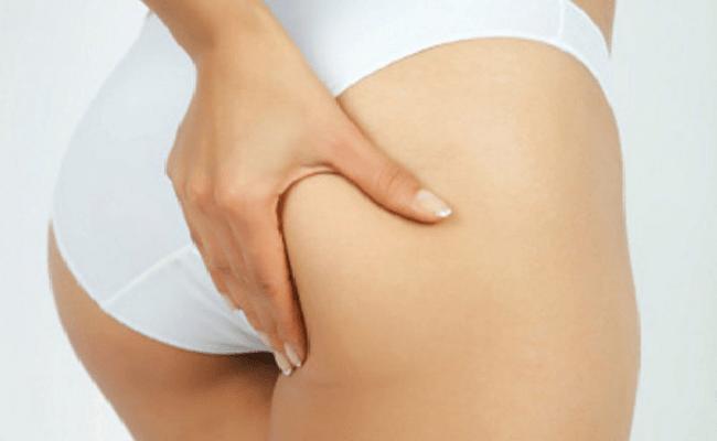 Giảm béo mông