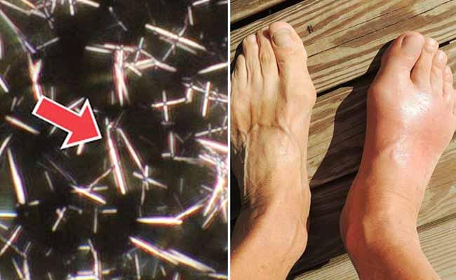 Muối urat là đặc trưng nhận biết của bệnh gout