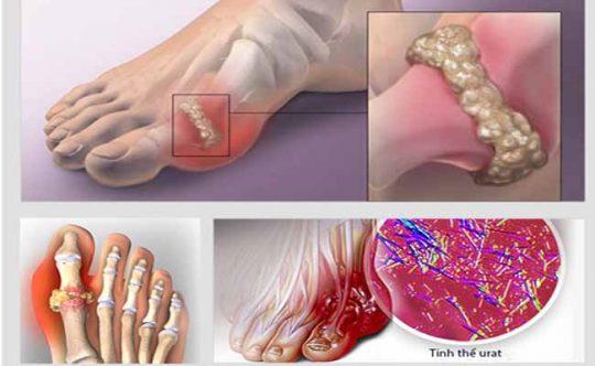 Tinh thể muối urat lắng đọng khiến người bệnh gout khó vận động