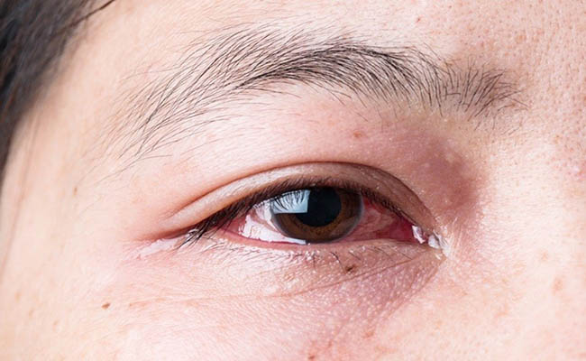 Chữa đau mắt đỏ bằng vàng đằng