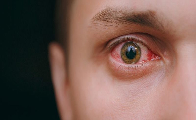 Trị đau mắt đỏ bằng hoàng đằng